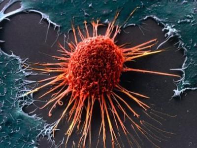 Создана база геном детей, больных раком