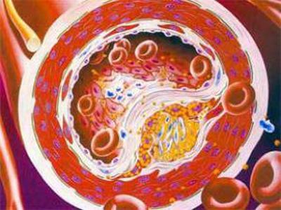 Ученые утверждают, что холестерин оберегает мозговые нервы